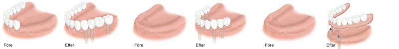 wp-implant-se